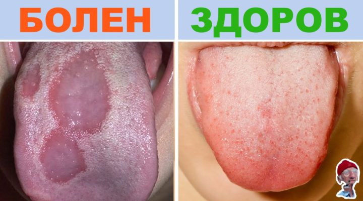 ПРОВЕРЬТЕ ЦВЕТ СВОЕГО ЯЗЫКА! 10 ПРИЗНАКОВ БОЛЕЗНИ по цвету языка (Check the color of your tongue! 10 SIGNS OF DISEASE IN a tongue color.)